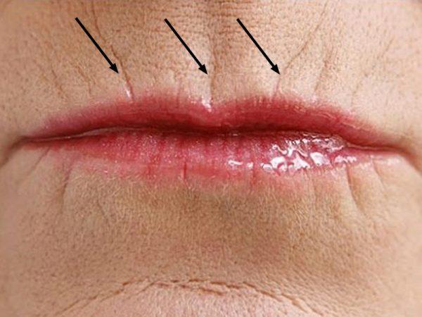 Способы борьбы с кисетными морщинами над верхней губой