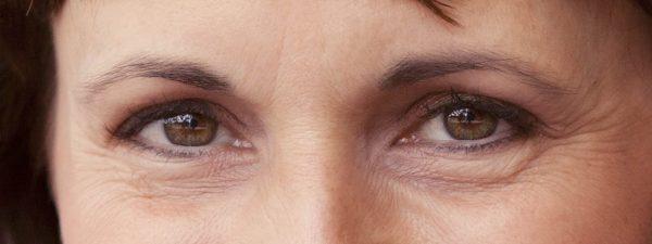 Выход есть: избавляемся от морщин вокруг глаз в домашних условиях