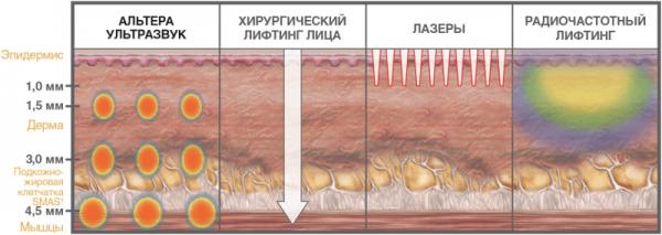 Аппаратная подтяжка лица: омоложение без операций
