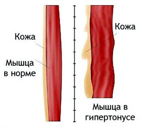 Ботокс: химическое оружие в борьбе с носогубными складками