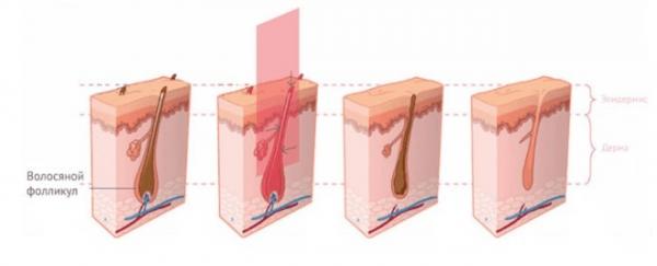 Чем отличается диодный лазер от александритового
