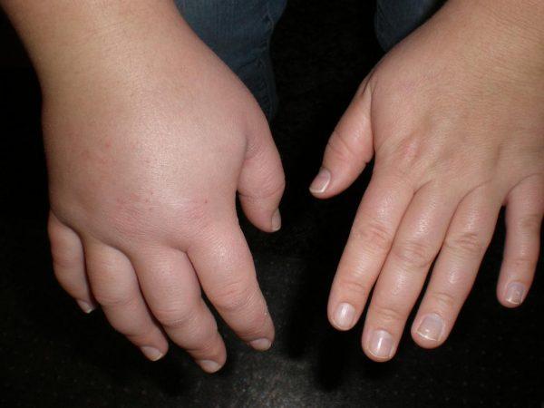 Гидрокортизоновая мазь как средство против морщин