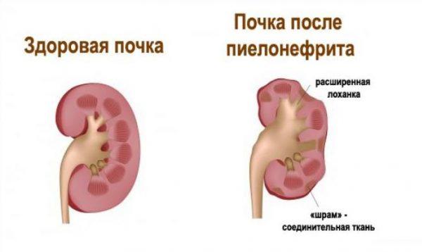 Лечебное воздействие на организм аппликатора Ляпко