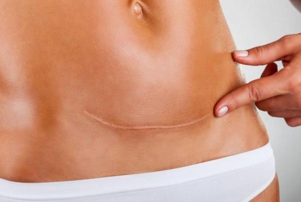 Можно ли при грудном вскармливании ходить в солярий: плюсы и минусы для молодых мам