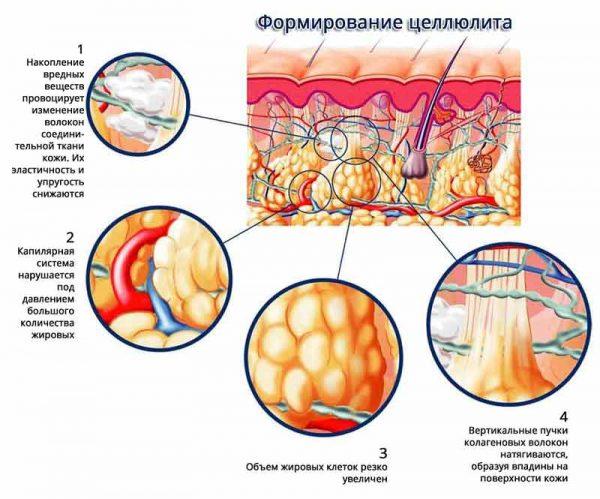 Разогревающие свойства Эуфиллина в борьбе с целлюлитом