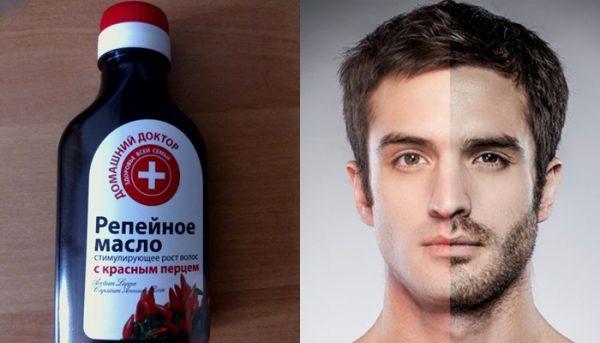 Репейное масло для красоты и здоровья
