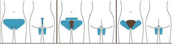 Шугаринг зоны глубокого бикини: как провести дома и в салоне